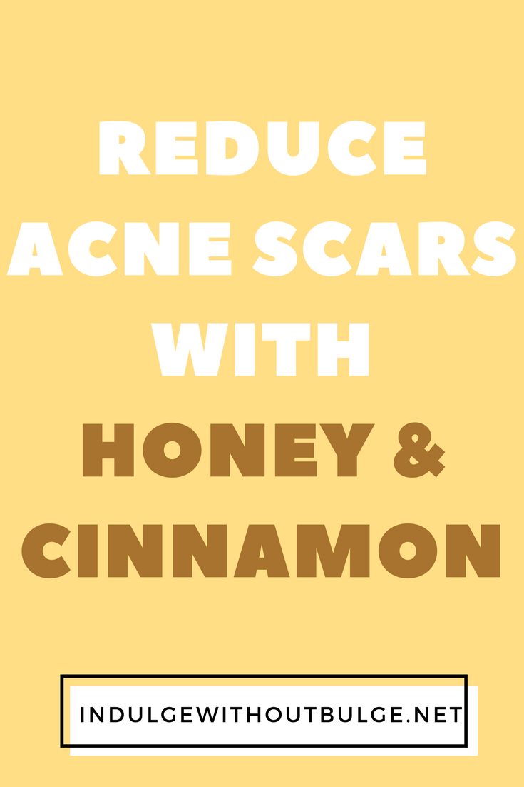 reduce acne scars with honey and cinnamon